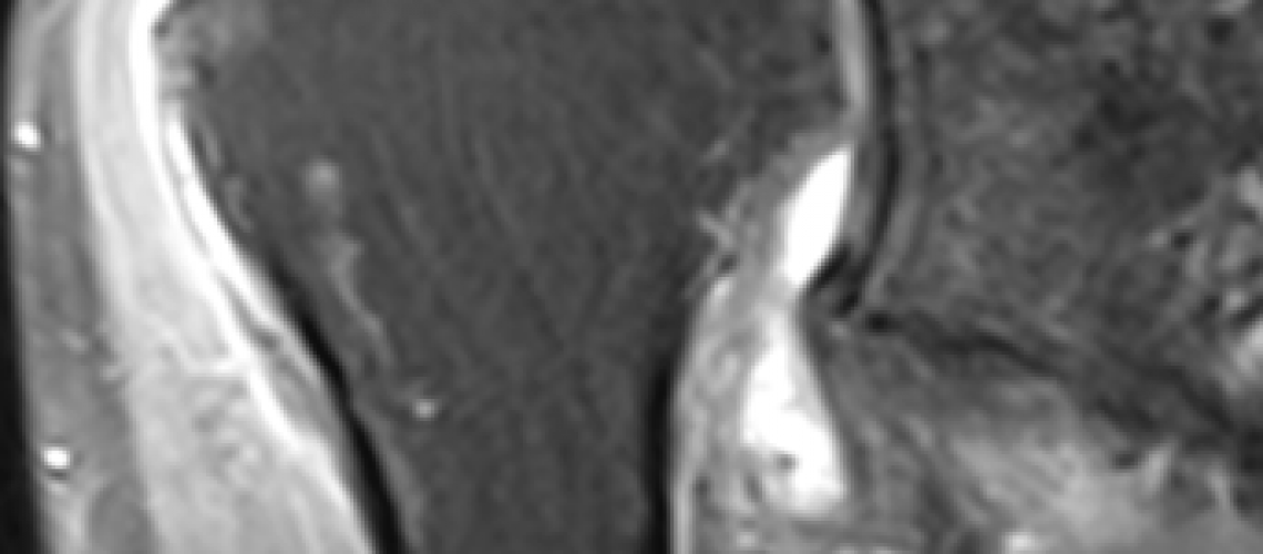 MASSIVE TAER_MRI