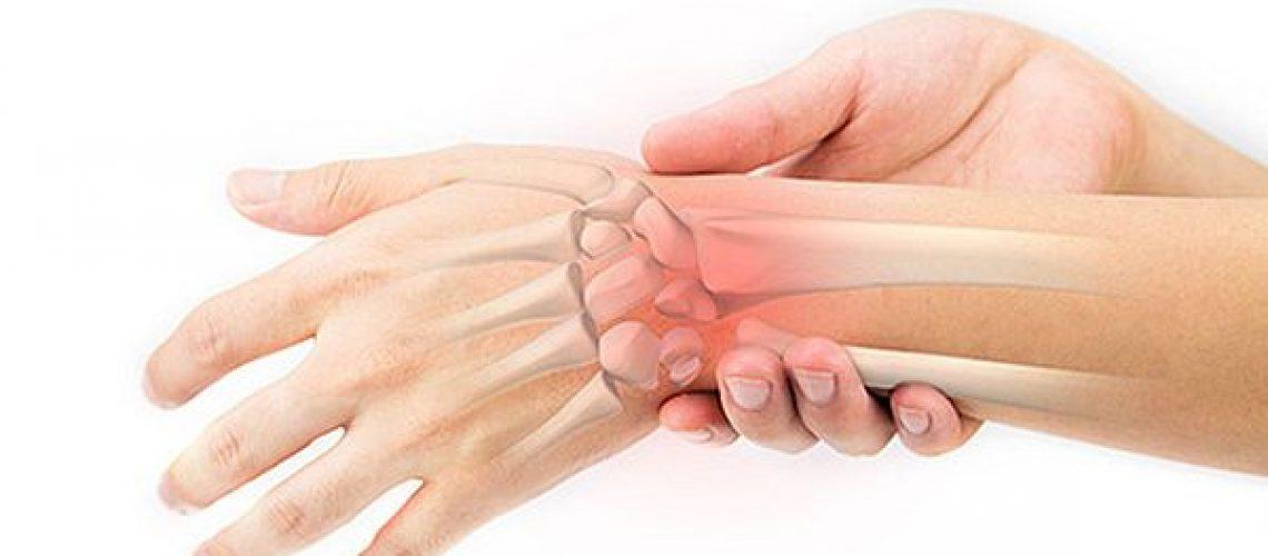 Wrist-supports-sprained-wrist