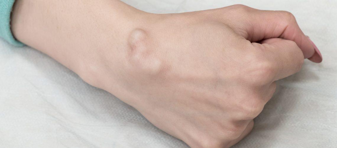 ganglio-hand